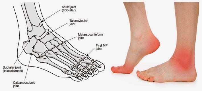 jeukende tenen oorzaak