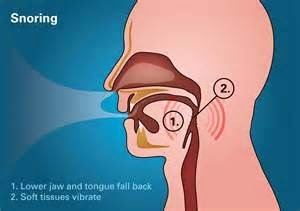 Snoring and Sleeping Disorders Causes and Treatment