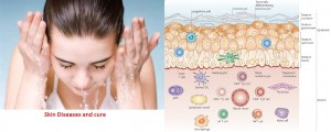 Skin Diseases and Cure