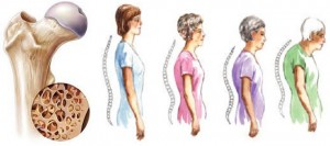 Osteoporosis Disease and Prevention