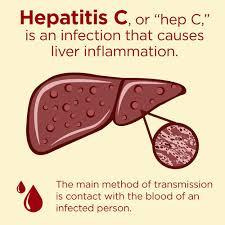 Hepatitis C Disease