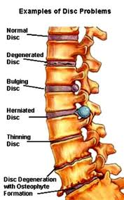 Backache-Spine Pain-Lower Back Pain and Upper Back Pain