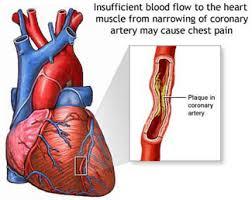 Diabetes-Heart Disease Symptoms