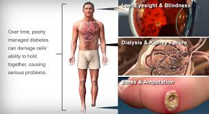 Diabetes-Heart disease-Stroke-Symptoms-Long Term Complications and their Natural Treatment
