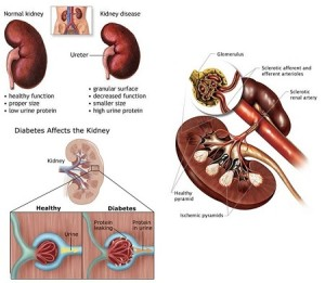 Diabetes-Kidney Disease-Diabetic Nephropathy Symptoms prevention and Treatment-Long Term Complications and Home Remedies