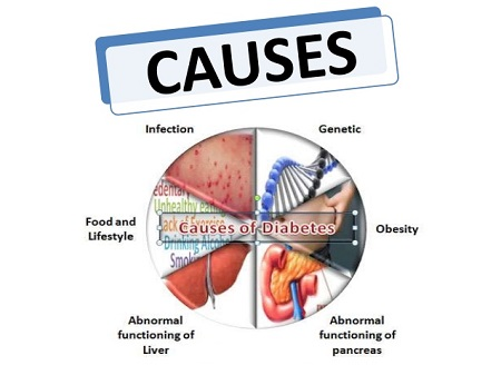 Different Causes of Diabetes