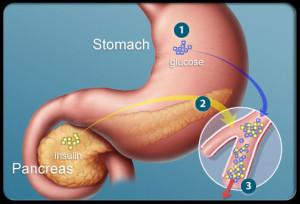 Diabetes Symptoms Causes and best Treatment