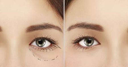 Under Eye Bags and Puffiness Treatment