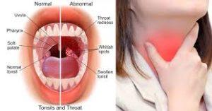 Cure Sore throat