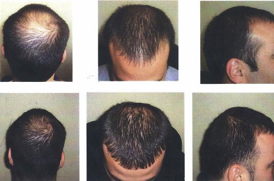Baldness-Cure