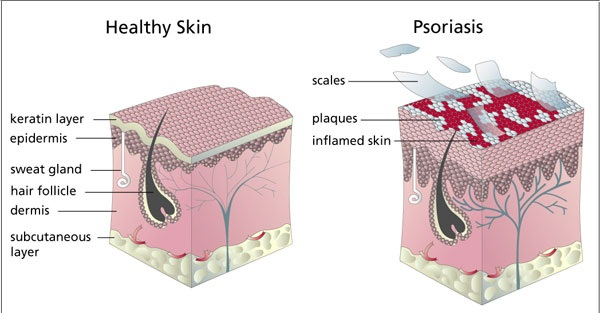 Psoriasis Causes and Symptoms