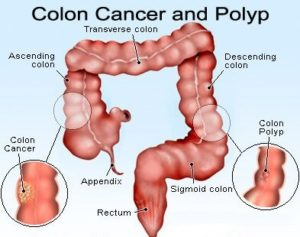 5 Signs of Colon Cancer Folks Ignore For Years Is High Risk