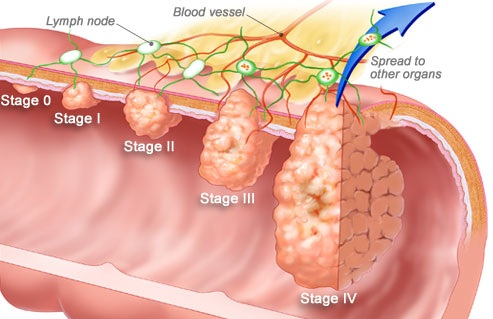 colorectal_cancer_stages